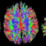 Neurociencia y Neuropsicología: cómo entender el cerebro usando la tecnología