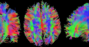 Neurociencia y Neuropsicología: cómo entender el cerebro a través de la tecnología